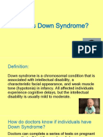 downsyndrome powerpoint