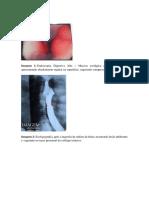 Leiomiona de esofago.pdf