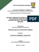 LaserPuntura vs Acupuntura, un estudio.pdf