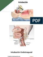 intubación-endotraqueal