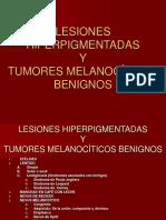 57537967 Nevus Lesiones Hiperpigmentadas y Tumores Melanociticos Benignos