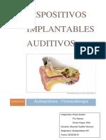 Dispositivos Implantables Auditivos