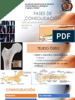 Consolidación ósea.