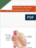 Bradyarrhythmias AV