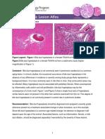 Liver-bile Duct Hyperplasia 508