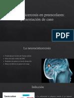 Neurocisticercosis en Preescolares