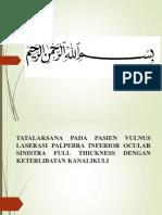 VULNUS LASERASI PALPEBRA