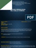 Caso Lesiones Premalignas Del Cuello Uterino