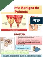 hipertrofiabenignadeprostataxf-140713175156-phpapp02.pdf