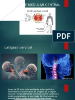 Síndrome Medular Central