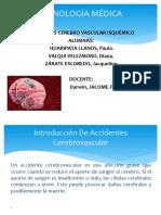 Accidentes Cerebrovascular Isquémicoo