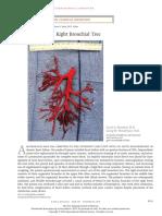 Nejmicm1806493 (Bronchitis Journal)