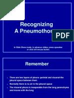 3. Recognizing Pneumothorax.ppt
