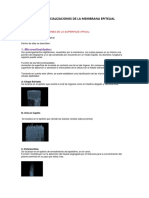 Presencia de la Membrana Epitelial.docx