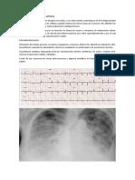 4. CASO N°4 (1).docx