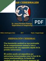 herniacioncerebral-170930173045.pdf