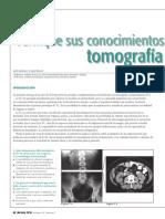 Verifique sus conocimientos sobre tomografía