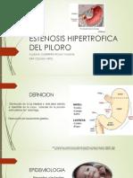 Estenosis Hipertrofica Del Piloro Yas (2)