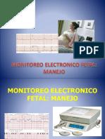 Equipos de Monitoreo Electronico Fetal[1]