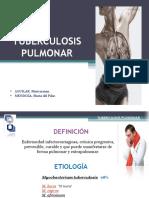 tuberculosis-130528133453-phpapp02.pdf