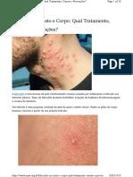 Foliculite - OPAS - Qual Tratamento