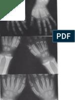 gambar kelainan vit d.docx