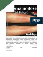 ERITEMA NODOSO.pdf