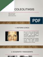 Wiki 6 coleolitiasis