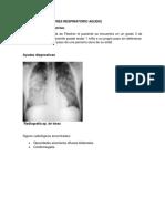 CASO CLINICO atelectasia.docx