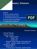II.5. Pulmonary Stenosis
