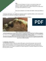 Pigmentación del esmalte y la dentina.docx