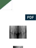 knee.pptx