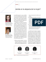 finasteride en alopecía femenina.pdf