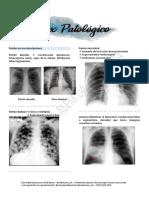 Medicina Por Imagens - Tórax Patológico