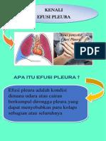 FLIPCART EFUSI PLEURA.docx