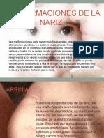 Malformaciones-de-la-nariz.pptx