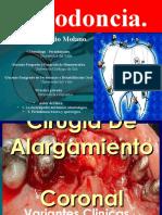cirugiadealargamientocoronalpreprotesica-140325222228-phpapp01.pdf