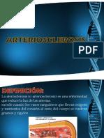 Arteriosclerosis t