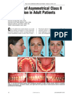 Treatment of Asymmetrical Class II Malocclusion in Adult Patients