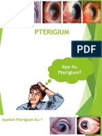 pterigium penyuluhan