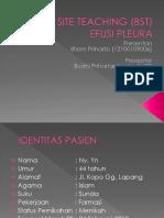 BST Pleural Effusion