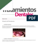 Tratamientos Dentales_ Glosario de Periodoncia