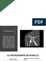 Dpi Artrografia