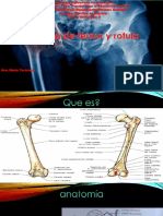 presentacion de fractura de rotula y femur