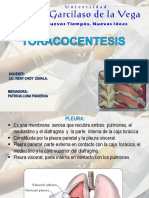Toracocentesis Ppt- Expo