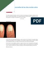Lo que estas anomalías de las uñas revelan sobre tu salud