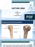 Fracture Arm