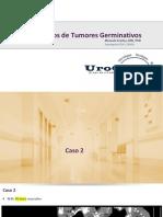 Casos Complexos de Tumores Germinativos - Caso 2 - Não Seminoma Primário de Mediastino
