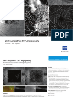 ZEISS AngioPlex Case Reports US 31 150 0032I