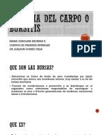 Higroma Del Carpo o Bursitis
